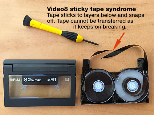 Video8 sticky tape syndrome